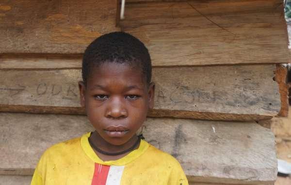 Questa ragazzina Baka è stata torturata da una squadra anti-bracconaggio finanziata dal WWF in Camerun all'inizio del 2016, all'età di 10 anni.