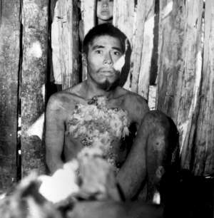 Aché man shortly after he was captured and brought out of the forest to the Aché Reservation. Paraguay, 1972.