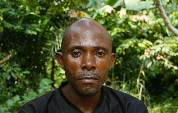 """This Baka man from Ndongo village reported that he was severely beaten by anti-poaching squads on two occasions. His neighbors have appealed to WWF to stop funding such abuses."""