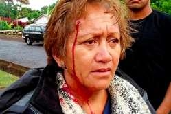 Femme rapa nui blessée par une balle en caoutchouc