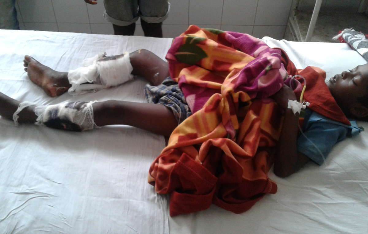 Akash Orang, a seven year old tribal boy, was maimed for life after being shot by a guard in Kaziranga National Park.