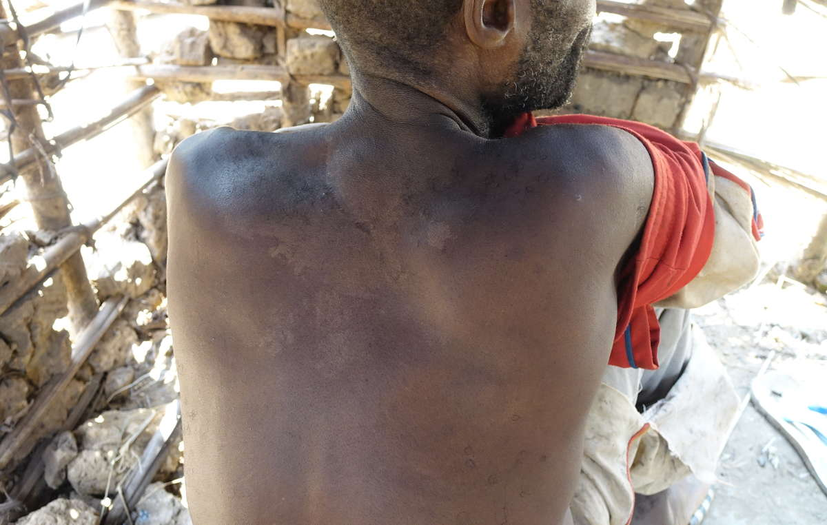 A man from a village near the proposed Messok Dja national park shows scars from a beating he received at the hands of ecoguards supported and funded by WWF
