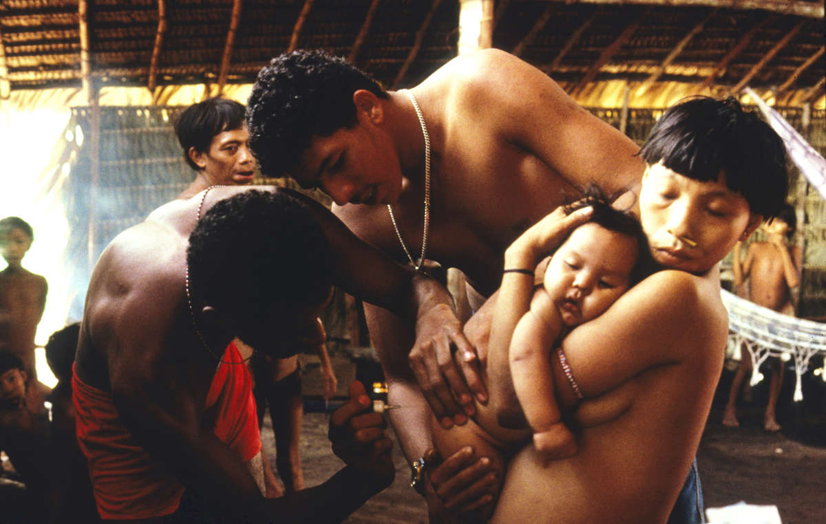 CCPY doctor examines a sick Yanomami child, Balaú, Brazil.