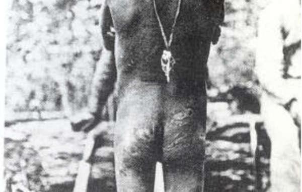 Un joven indígena amazónico con su cuerpo repleto de cicatrices fruto de las barbaridades cometidas durante la fiebre del caucho.