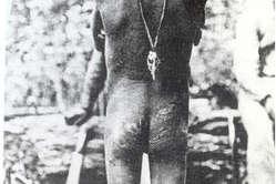 Ein junger Amazonas-Indianer zeigt erschreckende Narben des Kautschukbooms.