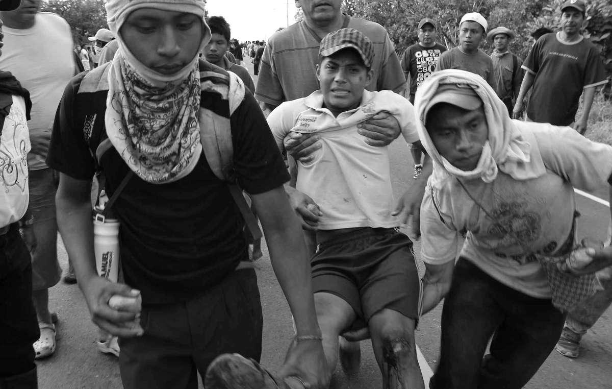 Trasladan a un joven ngöbe-buglé herido durante los enfrentamientos con la policía en Panamá.