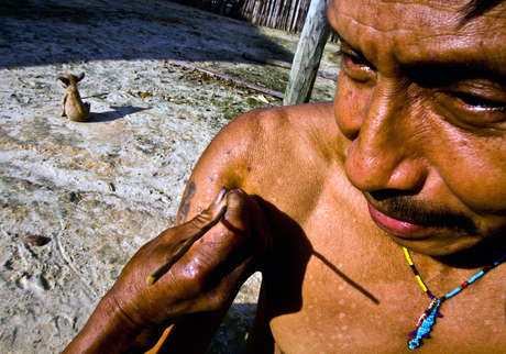 A Matsés man receives frog poison. His arms and chest show scars from where the poison has been applied previously.