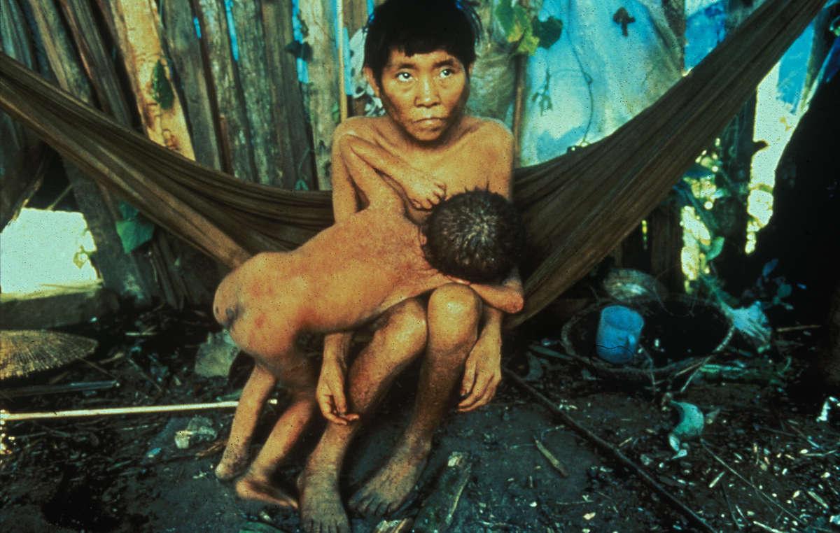 Yanomami-Mutter und Kind in einer Gemeinde, in der durch die Invasion der Goldsucher Krankheiten ausgebrochen sind, 1990.
