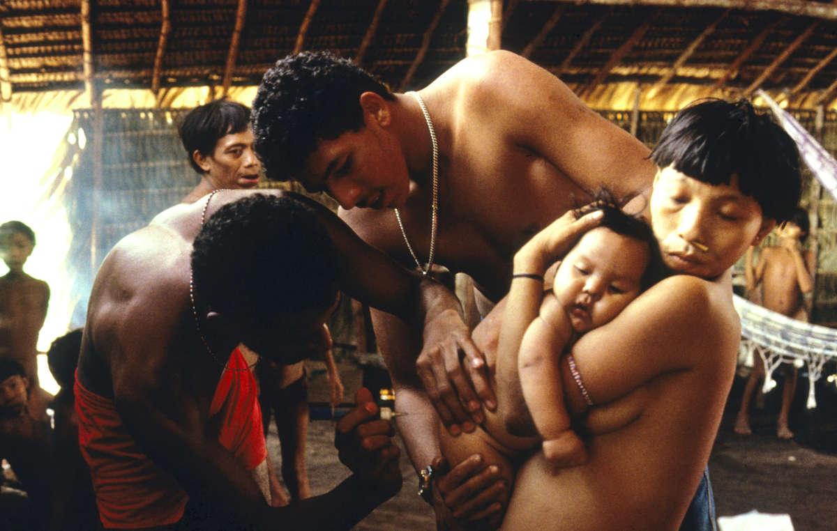 Doctor examina a bebé yanomami enfermo, Balaú, 1996